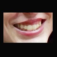 Smile700